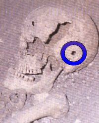 Skull with ballista bolt hole